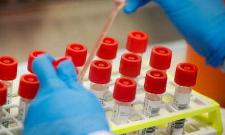 Acute Shortage of kits act as hurdles for Covid-19 testing in private labs